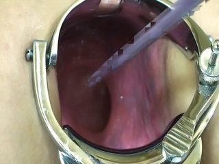 Elmer Wife Extreme Anal Speculum...